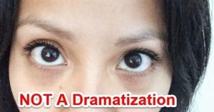 dark circles, coon eyes, beautysins, makeup, concealers